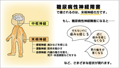 2013年9月20日 アルコール性小脳失調症 - 產田ノ眞 …